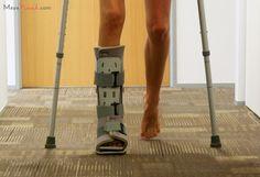 12 Best Injury Memes Images Broken Foot Ankle Surgery