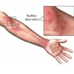 Best Treatment For Scabies