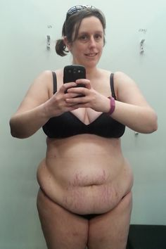 Body Positive Post Pregnancy