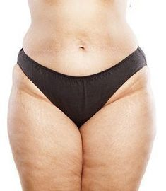 How is cellulite improved through balancing hormone levels? For years, the link between Human Growth Hormone and Testosterone to cellulite. Lipedema Diet, Before And After Liposuction, Personal Wellness, 54 Kg, Surgery Center, Ehlers Danlos Syndrome, Weight Loss Blogs, Body Love, Lose Belly Fat