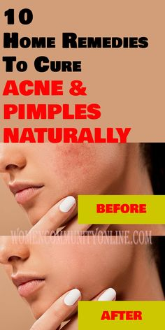 Treat Acne and Pimples Naturally - Do you have acne and pimples? If yes, get rid of your acne and pimples naturally with home remedies. These basic home remedies to cure acne and pimples naturally will also help you heal skin inflammation quickly and with no side effects. Acne And Pimples, Online Blog, How To Treat Acne, Side Effects, Home Remedies, Rid, Healing, Community