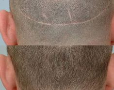 Repair Scars. For more informations read here: http://www.hairtransplant-drmichalis.com/about-hair-transplant/repair-scars/
