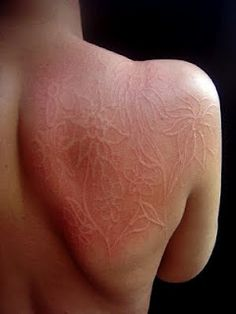 26 Best Dermatographia images in 2019 | Urticaria, Disorders