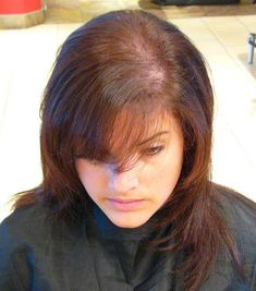 9 Razones de la pérdida de cabello