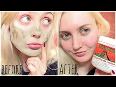 ♥ Demonstration review: Aztec Secret Indian healing Clay face mask ♥ - YouTube Skin Care Treatments, Acne Treatment, Best Solution For Acne, Aztec Mask, Indian Healing Clay, Clear Pores, Whipped Body Butter, Clay Masks, Stretch Marks
