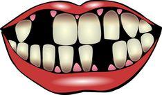 Dental implantsare modern dentistry's best option for replacingmissing teeth. But, you must evaluate your dental implants options before implantation. Dental Hygiene, Dental Health, Oral Health, Dental Care, Affordable Dental Implants, Teeth Implants, Dental Insurance, Best Dentist, Cake