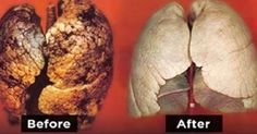 Choice and Truth: How to Clean Up and Detox Your Lungs in just 3 Days