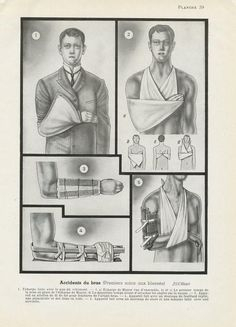 Small arm anatomy art from 1938 Vintage first aid print. Gift for doctor student nurse paramedic EMT. Medical Gifts, Medical Art, Nurse Gifts, Arm Anatomy, Anatomy Art, Nursing Students, Student Nurse, Medical Office Decor, Gift Guide For Men