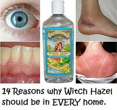 Kaila's Place| 14 reasons why Witch Hazel should be in every home