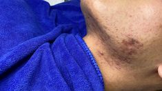 Pimple Popping, Pimples, Aerial View, Acne Treatment, Junk Journal, Youtube, Scrapbooking, Youtubers