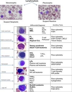 Figure 2: Diagnostic algorithm for the workup of lymphocytosis. Pleomorphic lymphocytosis favors a reactive etiology. Correlation with clinical and laboratory testing is required. Monomorphic lymphocytes are concerning for a neoplastic process, and further workup including flow cytometric immunophenotyping and appropriate ancillary testing is required. *Pertussis infection is a reactive cause of monomorphic lymphocytosis, most often seen in pediatric populations.