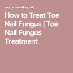 How to Treat Toe Nail Fungus   Toe Nail Fungus Treatment