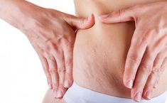 8 effective ways to remove stretch marks naturally