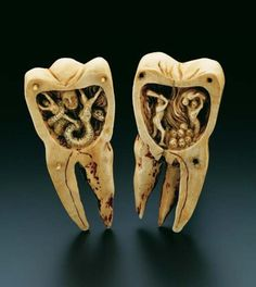 "A French carving, dating from the 1700s, designed to look like a human molar. At 10.5 centimeters in height it depicts inside its two halves, ""The tooth worm as Hell's demon"" an explanation of the toothache as a battle occurring with the mythical tooth worm. The legend of the tooth worm apparently dates back to 1800 BC Mesopotamia and even has its own creation myth."