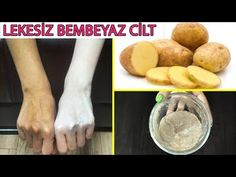 15 Minutes Skin Whitening Challenge, Get Fair Skin, Glowing Skin and Spotless skin with potato Facial Bleach. This is a magical natural remedy for Skin Natural Skin Whitening, Whitening Cream For Face, Whitening Face, Skin Care Routine For 20s, Face Scrub Homemade, Lighten Skin, Whiten Skin, Oily Skin, Tips Belleza
