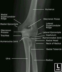 Anatomía radiológica antero-posterior del codo. La Unidad Especializada en Ortopedia y Traumatologia www.unidadortopedia.com PBX: +571-6923370, Móvil: +57-3175905407, Bogotá, Colombia.