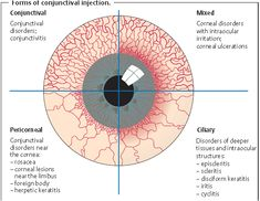 Types of conjunctival injection