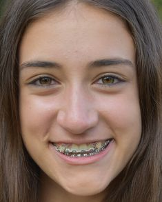 Make fake braces or a fake retainer fake braces and childhood braces metalbraces girlswithbraces loops powerchain solutioingenieria Choice Image
