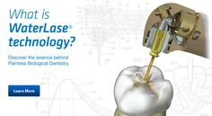 What is Waterlase Technology? Discover the science behind painless biological dentistry.