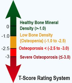 reverse osteoporosis in 6 months - increase bone density by, Skeleton