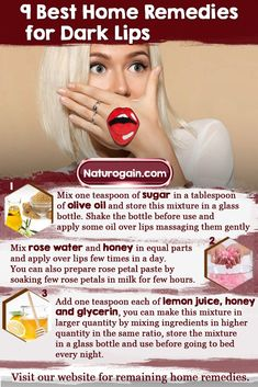 Learn about 9 best home remedies for dark lips to lighten black lips. These easy tips regain natural color of lips and keep lips soft and supple naturally. Beauty Tips For Glowing Skin, Health And Beauty Tips, Beauty Skin, Natural Pink Lips, Natural Skin Care, Skin Care Remedies, Home Remedies, Remedies For Dark Lips, Lip Lightening