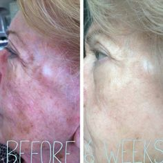 "One of my fellow consultant's grandmother turned 80 yesterday and look at her skin after 6 weeks! She used our ""Age Assault"" kit to produce skin that is now smoother, firmer and more radiant. Find out what's in this revolutionary kit: https://sarahkwheeler.myrandf.com/Shop/Product/AASLT01"