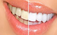 Whiter Teeth ~Baking Soda and Lemon. This may b - Whiter Teeth ~Baking Soda and Lemon. This may be one of the most popular of the natural teeth whitening home remedies. The chemical reaction of baking soda with the citrus of lemon juice has a sm