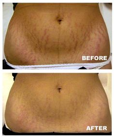 How to Get Rid of Stretch Marks you ask?  It Works! Stretch Mark cream!  $39 as a Loyal Customer! Commit2beingfit.com