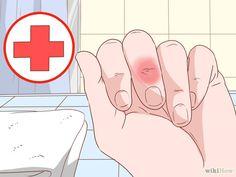 Je kunt een splinter namelijk uit zichzelf uit de huid laten komen door een stukje brood op een pleister te doen en deze over...