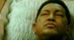 NO OFICIAL,Difunden foto de Chávez muerto