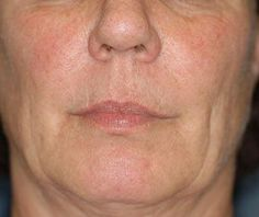 Facelifts Without Surgery Using Face Yoga Exercises: Face Exercises For Face Tightening: Does Your Face Have Sagging Jowls And Cheeks?