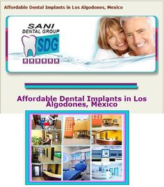 #Sani_Dental, located in Los Algodones, Mexico, offers an affordable #Dental_Implants package, so that each patient would have a chance to get the perfect and #bright_smile, anyone longs for.