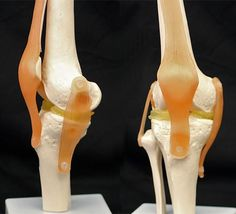 3D solution for damaged knees using a mix of two biocompatible hydrogels