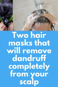 Two hair masks that will remove dandruff completely from your scalp At least – dandruff remedy Itchy Scalp Remedy, Home Remedies For Dandruff, Dry Itchy Scalp, Scalp Scrub, Hair Remedies, Natural Remedies, Hair Mask For Dandruff, Scalp Mask, Diy Hair Mask