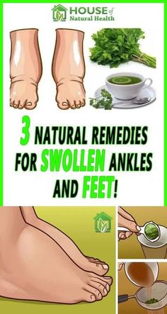 Easy 12 Home Remedies of How to Reduce Swollen feet - Natural Cure for Swollen Feet