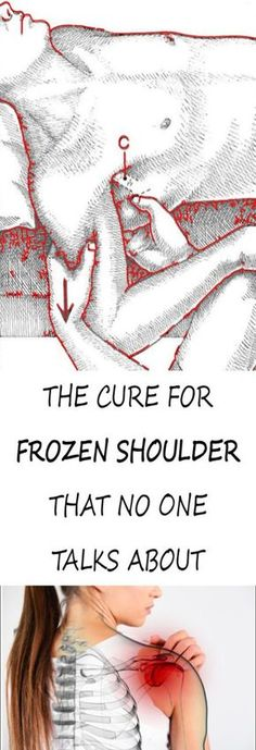 Frozen shoulder, also known as adhesive capsulitis, isn't as official as it sounds. Frozen shoulder just refers to shoulder pain that leads to restricted range of motion. It is a catch-all diagnosis for shoulder pain[. Frozen Shoulder Pain, Frozen Shoulder Exercises, Frozen Shoulder Treatment, Shoulder Stretches, Shoulder Massage, Shoulder Workout, Frozen Shoulder Surgery, What Is Frozen Shoulder, Natural Headache Remedies