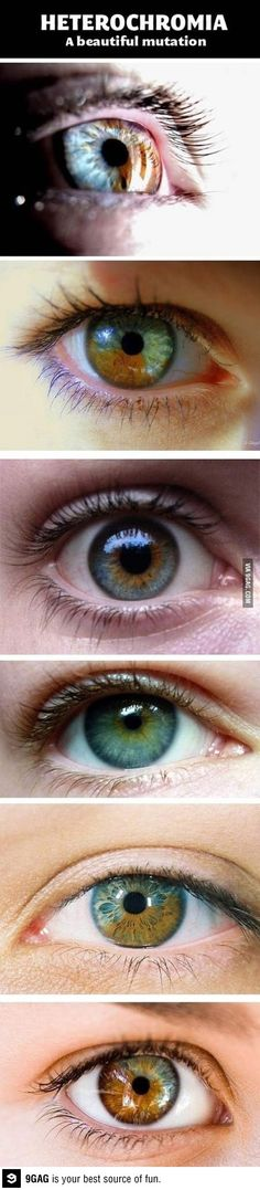interesting. heterochromia. a beautiful eye mutation.
