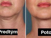 7 způsobů, jak odstranit povislou dvojitou bradu. Garantujeme Vám 10-letý rozdíl!