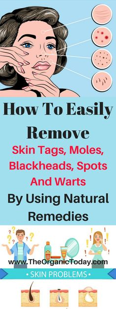 How To Easily Remove Skin Tags, Moles, Blackheads, Spots And Warts By Using Natural Remedies