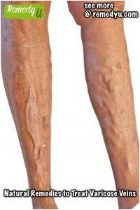 cum de a elimina durerea varicose picior