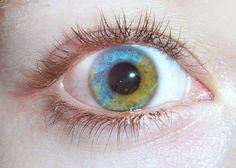 Heterochromia Iridum (Sectorial Heterochromia) Difference in coloration of the eye iris.