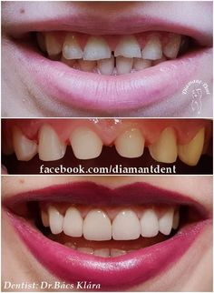 New Smile, new life 🙂 Have a Bright smile! Dental Bridge,Crowns Diamant Dent New Smile, new life :] Have a Bright smile! Teeth Implants, Dental Implants, Dental Hygienist, Dental Care, Smile Dental, Smile Teeth, Dental Bridge Cost, Dentist Day, Health Activities