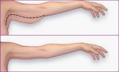 Arm fat can adversely affect your dressing choices, level of activity, and in deed your self-e...