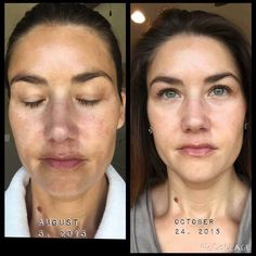 Check out Alison's 60 day results using R+F's Reverse regimen! She no longer has to cover up her uneven skin tone with heavy make up and her skin has a radiant glow now! You ready to change your skin?? Visit my website to order or message me! #makethechangetoday