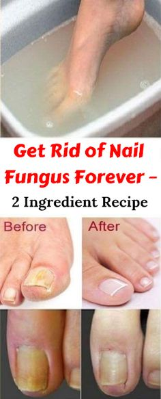 Get Rid of Nail Fungus Forever – 2 Ingredient Recipe - Nagelpilz Natural Health Remedies, Natural Cures, Natural Healing, Herbal Remedies, Natural Treatments, Natural Foods, Cold Remedies, Natural Beauty, Holistic Healing