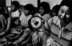 W. Eugene Smith. JAPAN. Minamata Bay. A victim of the disease. 1971.