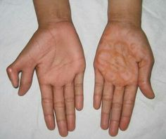 Polydactly ( hand )