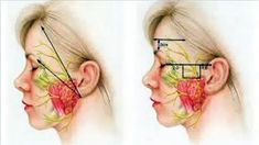 How to Cure Bell's Palsy Facial Nerve Disorders - video dailymotion Bell's Palsy, Nerve Disorders, Fake News Stories, Facial Nerve, Alternative Treatments, The Cure