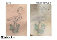 It's a cheesy caption … but where did that flamin-go? This old 'first tattoo' is getting faded for a fab new cover up – watch this space for more!  Want to get results like this? Call 0422 540 773 for your free consultation or go to http://www.unwantedinktattooremoval.com/landing-page.html for your FREE Fade it Faster Guide