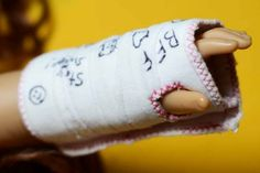 Tutorial: All Bandaged Up! arm cast for an 18″ doll